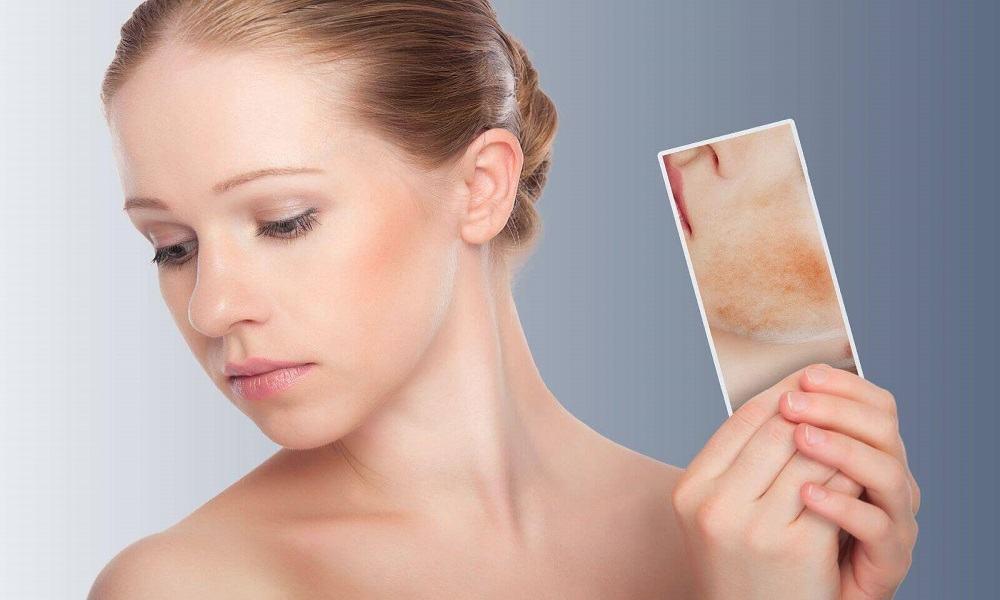 La rosácea, enrojecimiento crónico de la piel