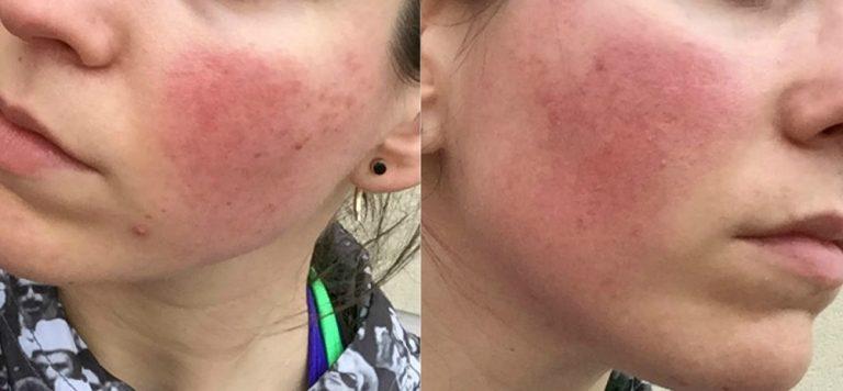 Tratamiento de la piel rosácea