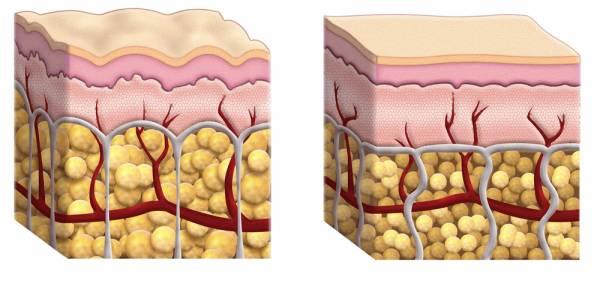 Celulitis Piel