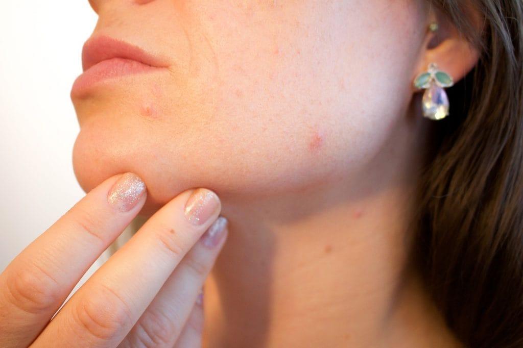 qué tipo de piel facial tenemos y cómo podemos tratarla