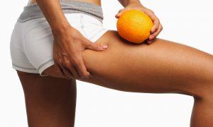Eliminar la celulitis es fácil con estos sencillos ejercicios