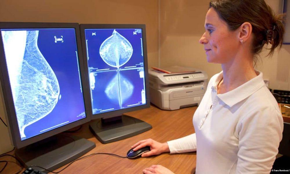 mamografía2