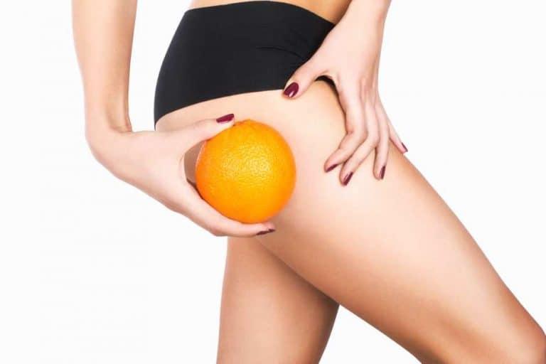 Para combatir la piel de naranja nada mejor que la mesoterapia