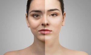 Blefaroplastia ¿Qué es y cómo se hace esta cirugía de párpados?
