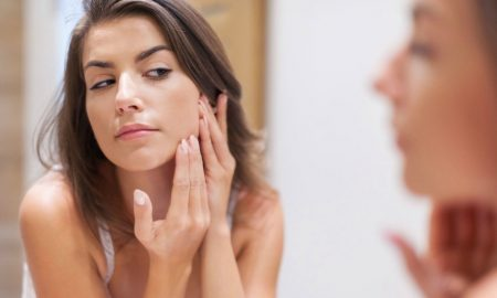 Remedios naturales para evitar el acné