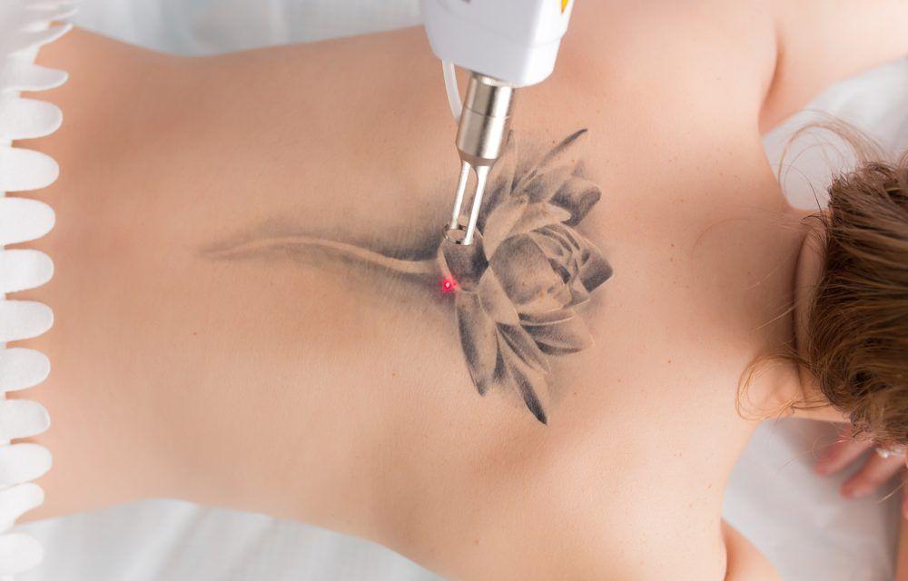 Cómo se eliminan los tatuajes