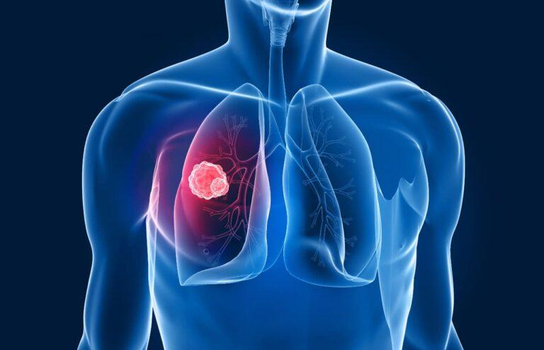 cáncer de pulmón: diagnóstico y tratamiento