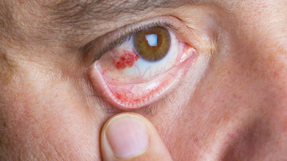 Causas derrames oculares o por qué aparecen manchas rojas en los ojos