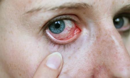 manchas rojas en el ojo