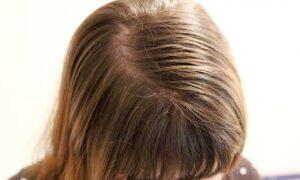 Trucos y consejos para controlar el cabello graso de forma sencilla