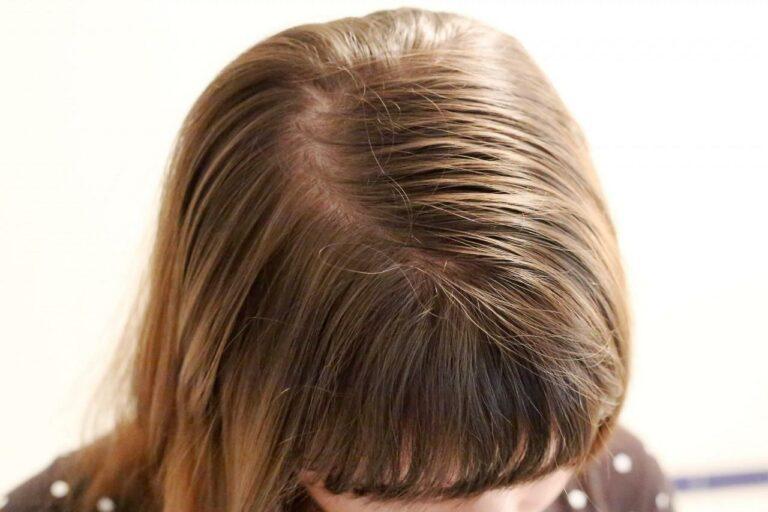 controlar el cabello graso